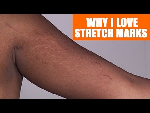 Love your stretch Marks