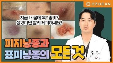시한폭탄! 피지낭종과 표피낭종 양성종양 그냥 두면 염증이나 고름이 될 수 있다고?