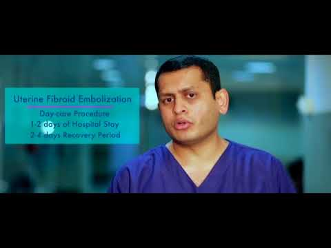 Uterine fibroid can be treated without Surgery - Dr  Vikas, Director of  Interventional Radiology