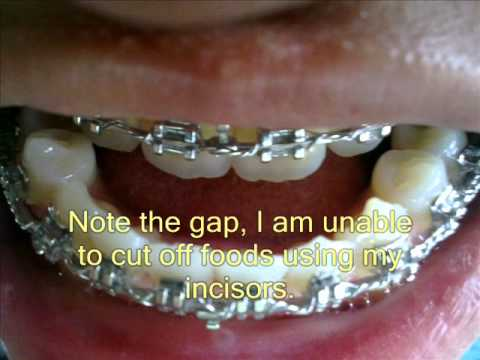 Underbite Jaw Surgery (Class III Malocclusion Correction) Before ...