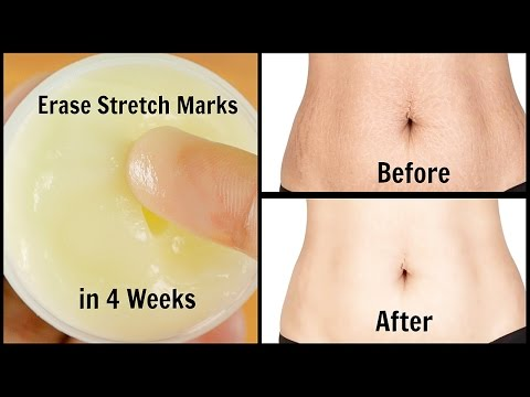 Erase Stretch Marks in 4 Weeks | Quick & Easy | 100% Works