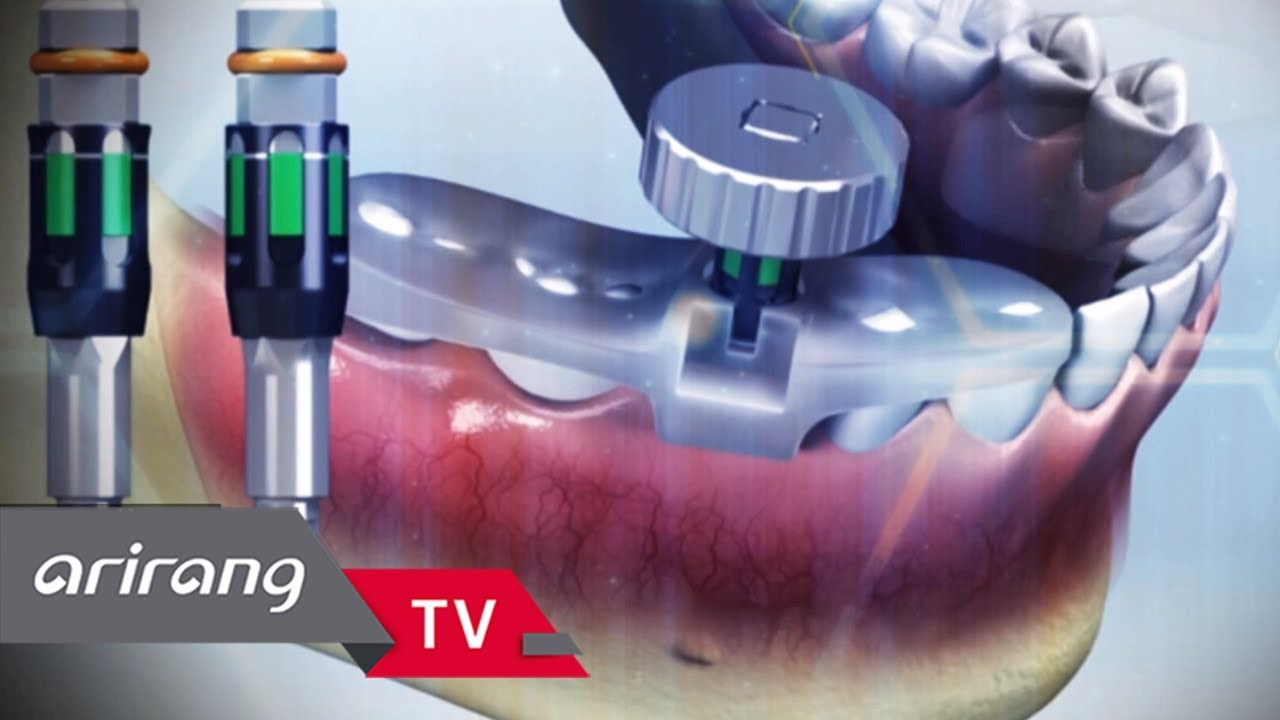 [BizSmart] Ep 43 - Megagen Implant / DYSOLUTECH / Myung San _ Full Episode