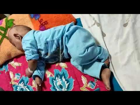 #Infantile#spasms (west syndrome) salaam seizure also ...