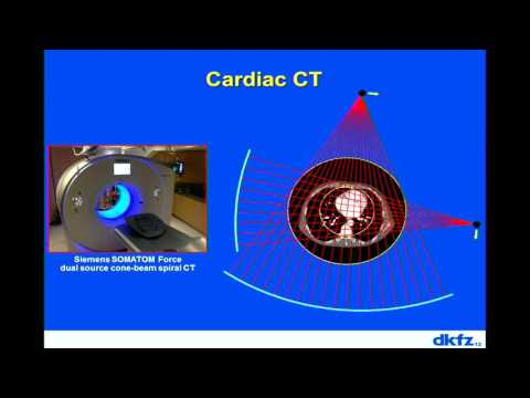 7th Annual TMII Symposium - 2017 - Session II - Cardiovascular Imaging - Dr. Marc Kachleriess