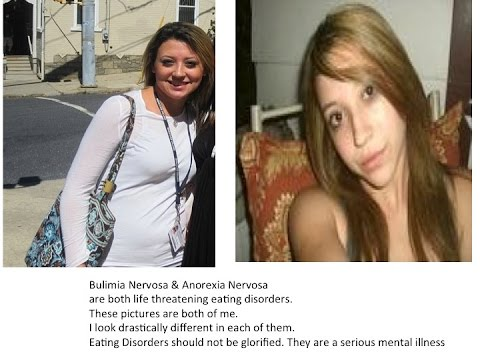 Anorexia and Bulimia Nervosa #NEDAWEEK   Sarah Carey