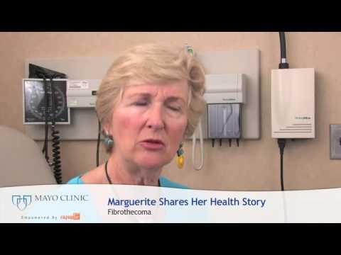 Fibrothecoma Treatment At Mayo Clinic, How Was It? - YouTube