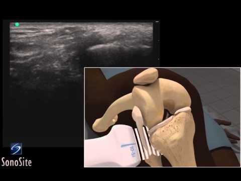 3D How To: Ultrasound Exam of the Lateral Collateral Ligament - SonoSite Ultrasound thumbnail