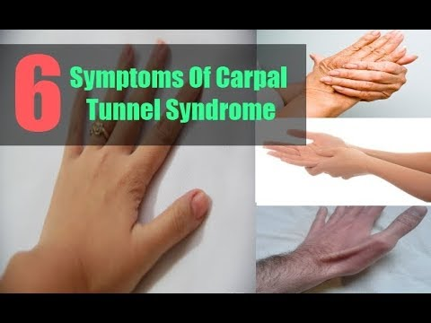 CARPAL TUNNEL SYNDROMECARPAL TUNNEL SYNDROME(CTS).CARPAL TUNNEL SYNDROMECARPAL TUNNEL SYNDROME(CTS)..