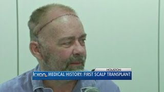 US doctors perform first skull-scalp transplant