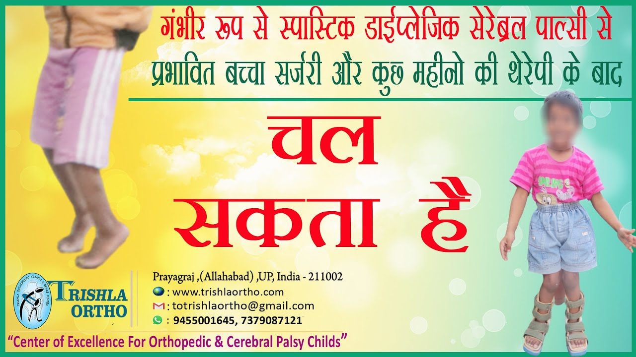 how to help a child with cerebral palsy walk