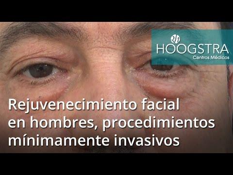 Rejuvenecimiento facial en hombres, procedimientos mínimamente invasivos (17024)