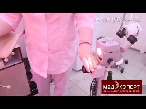 Видеокольпоскопия: преимущества, показания и методика проведения