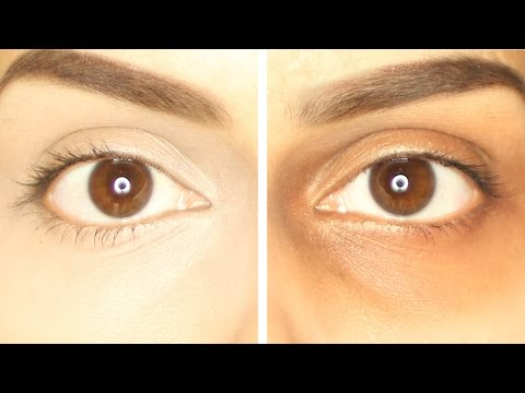 How to reduce Dark Circles | Home Remedies, Causes, Treatment