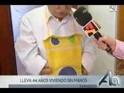 Un hombre sin manos en Aragon Television (España)