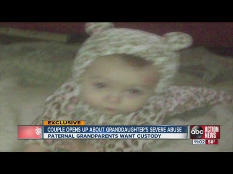 Severe case of child abuse in citrus county