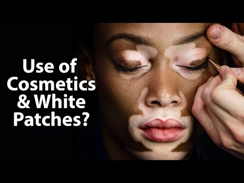 effects-of-cosmetics-on-white-patches-|-care-world-tv