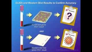 Diagnosis and Testing of HIV Infection