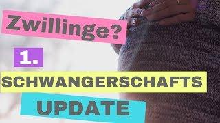 Unerwartet schwanger mit Zwillingen? | Schwangerschaftsupdate 7.+8. SSW | Ultraschall | Frauenarzt