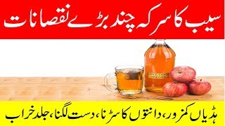Saib ke Sirke ke Nuksanat in urdu | Apple Cider Vinegar Side Effects