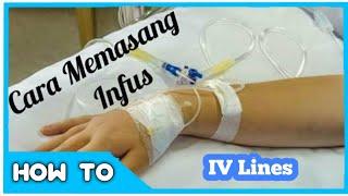 Cara Menginfus Pasien (Pemasangan Infus)
