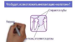 Видеоролик для тех, кому удалили зуб.(, 2015-11-18T22:00:13.000Z)