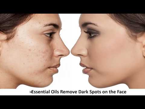 5-essential-oils-for-dark-spots-treatment