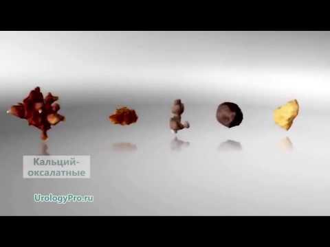 Как определить вид камней в почках