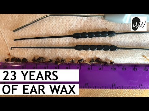 23 Years of Ear Wax Removal - #365
