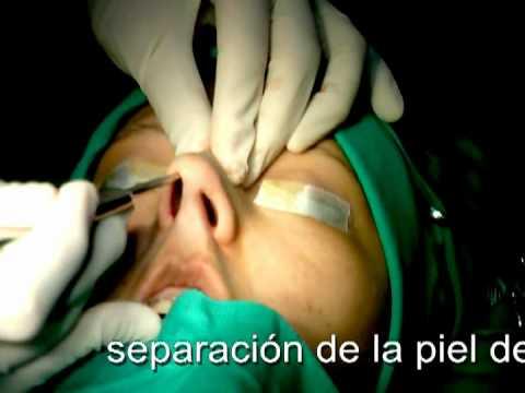 Rinoplastia con poste de punta (cligonz) - Cirugia de nariz - Lima Peru - Dr Guanilo