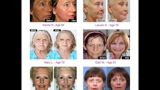 70 year old women look 40 again you will not believe their transformations