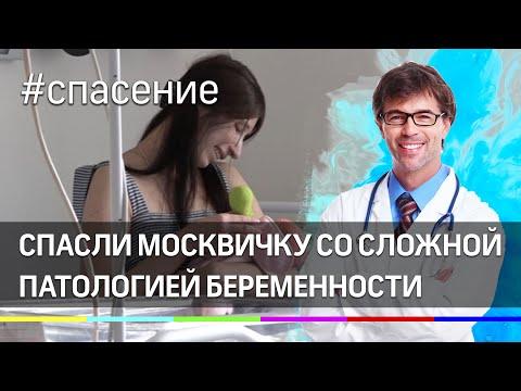 В перинатальном центре спасли москвичку со сложной патологией беременности