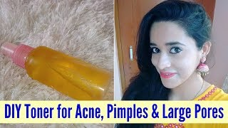 Gambar cover DIY Magical Toner For Acne, Pimples & Large Pores | Apple Cider Vinegar Toner | Just another girl