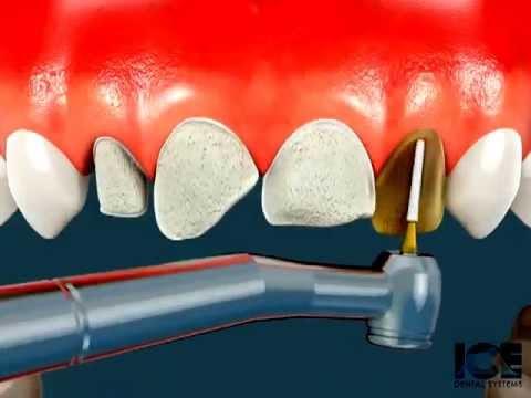 Quy trình làm răng sứ mô phóng trên máy tính
