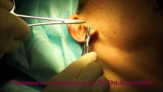 Ушивание мочки уха(Ушивание мочки уха в Эл.Эн. Клинике лазерных технологий. Запись по тел. (044) 384-06-16 http://www.elen-clinic.com.ua/services/lazernaya-khi..., 2015-05-18T14:20:27.000Z)