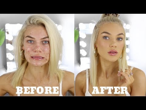 EVERYDAY MAKEUP FOR ACNE PRONE SKIN + Personal Life Update - YouTube