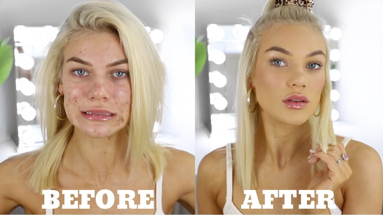 Download EVERYDAY MAKEUP FOR ACNE PRONE SKIN + Personal Life Update