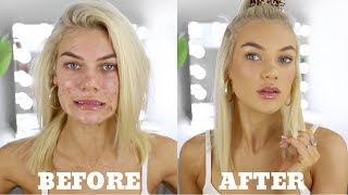 One of Chloe Szep's most viewed videos: EVERYDAY MAKEUP FOR ACNE PRONE SKIN + Personal Life Update