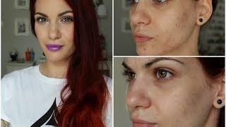 Skincare Routine ♡ Λιπαρό & Ακνεϊκό Δέρμα Thumbnail