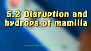 5.2 Disruption and hydrops of mamilla - Cold Laser Vityas - GYNECOLOGY
