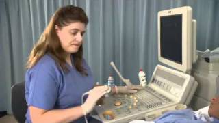 Repeat youtube video Ultrasound Training Assessment During First Trimester