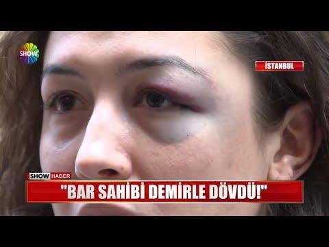 """""""Bar sahibi demirle dövdü!"""""""