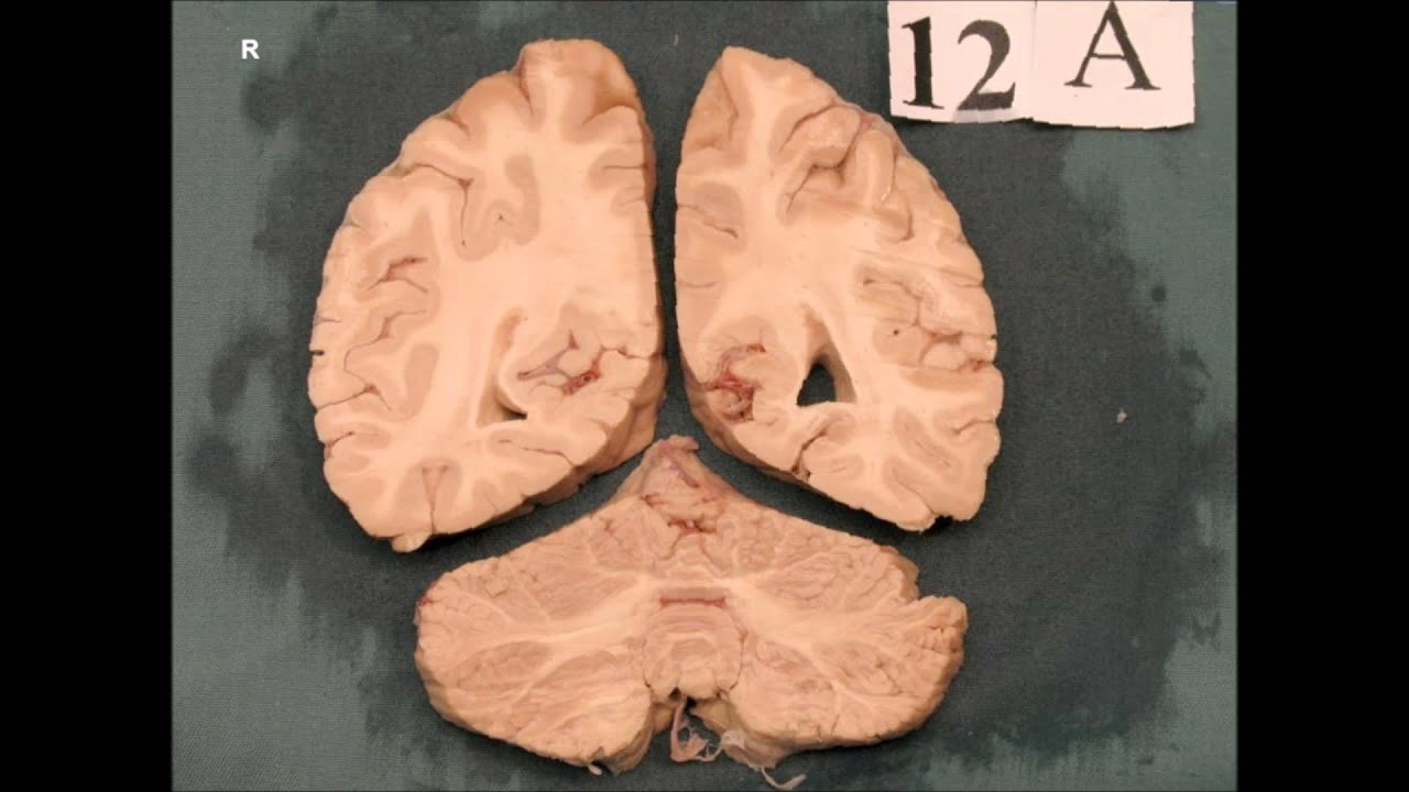 Brain Sliced Coronal Plane - YouTube