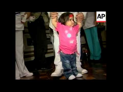 Second birthday of baby who had operation to separate her legs