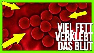 Fett verklebt das Blut ! | Karl scheißt ins Sieb | Strava | Platz frei für Mallorca