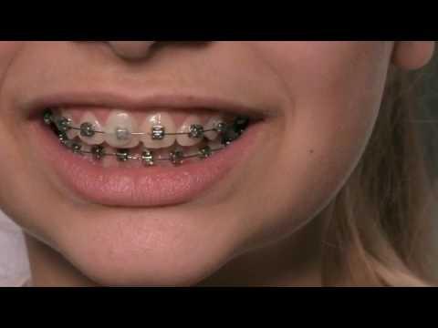 Сапфировые или железные брекеты ? / Damon System Clear braces .