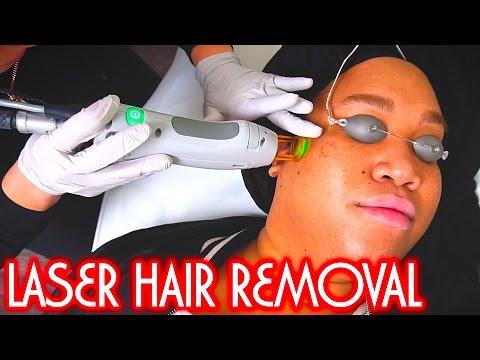 LASER HAIR REMOVAL | PatrickStarrr