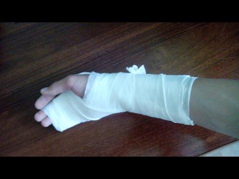 Как быстро и не больно сломать руку