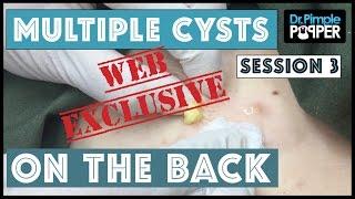 WEB EXCLUSIVE SNEAK PEEK: Huge Blackheads?! Session 3 With