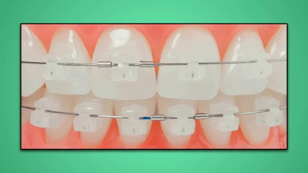 HOW TO USE 3M UNITEK SELF LIGATING CERAMIC BRACKETS - DENTALKART