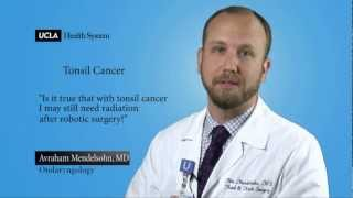 Real Questions | Tonsil Cancer | UCLA Head and Neck Surgery